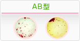 ボンベイ 血液 型